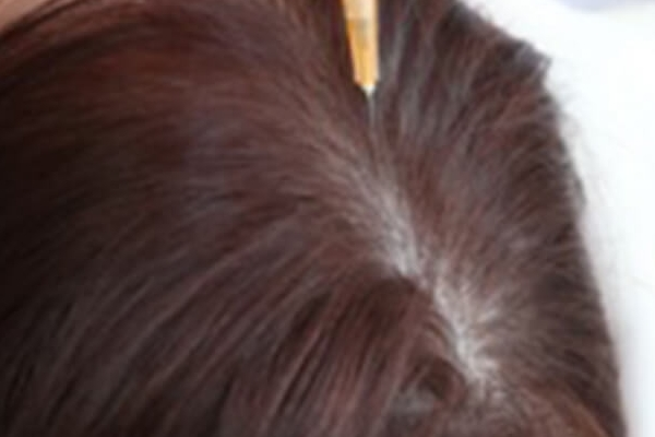Hair Transplantation And Hair Loss Treatments